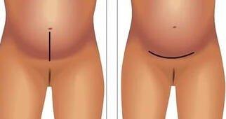 Виды разрезов кесарево сечение
